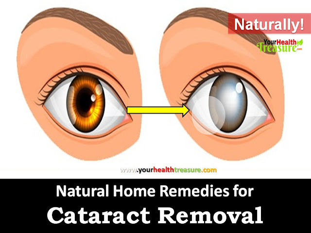Cataract Removal, How To Get Rid Of Cataract, Home Remedies For Cataract, natural Remedies For Cataract, Cataract symptoms, Cataract causes, honey for Cataract, How To Cure Cataract, Cataract Treatment, Cataract Home Remedies, Ways To Get Rid Of Cataract, How To Treat Cataract, Treatment For Cataract, Cataract Remedies,