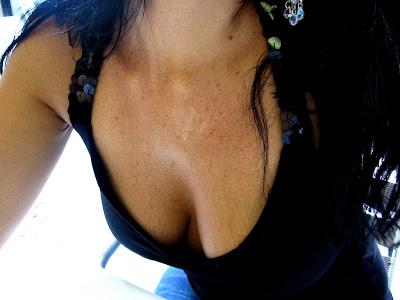 cara mengangkat payudara