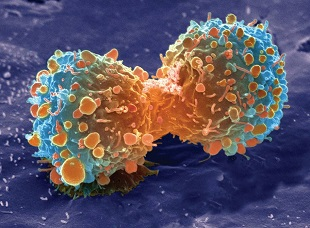 ملاحظة إنقسام الخلايا السرطانية في شعيرات دموية صناعية
