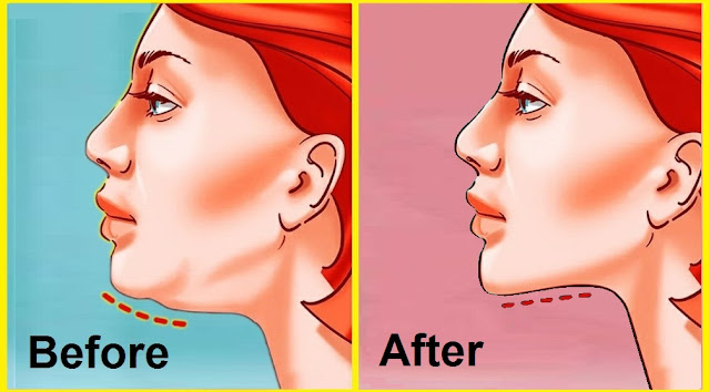Effective Exercises To Get Rid Of Double Chin And Neck Fat