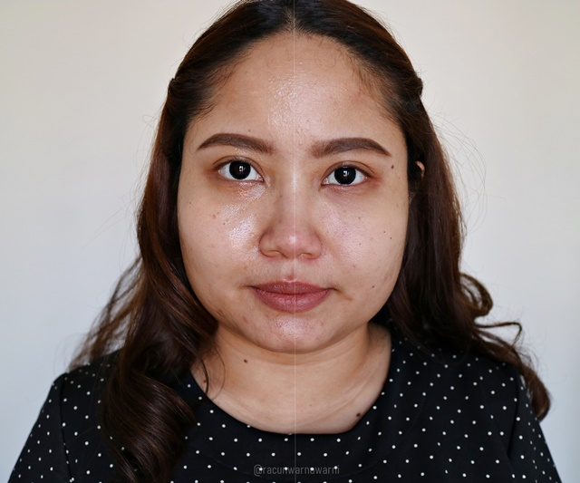 Before-After First Impression Bhumi Brightening & Dehydrated Skincare
