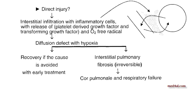 Interstitial-pulmonary-fibrosis