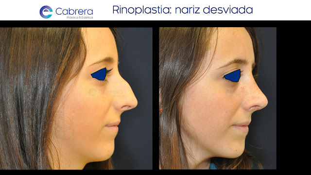 Caso antes y después 3 Rinoplastia Córdoba