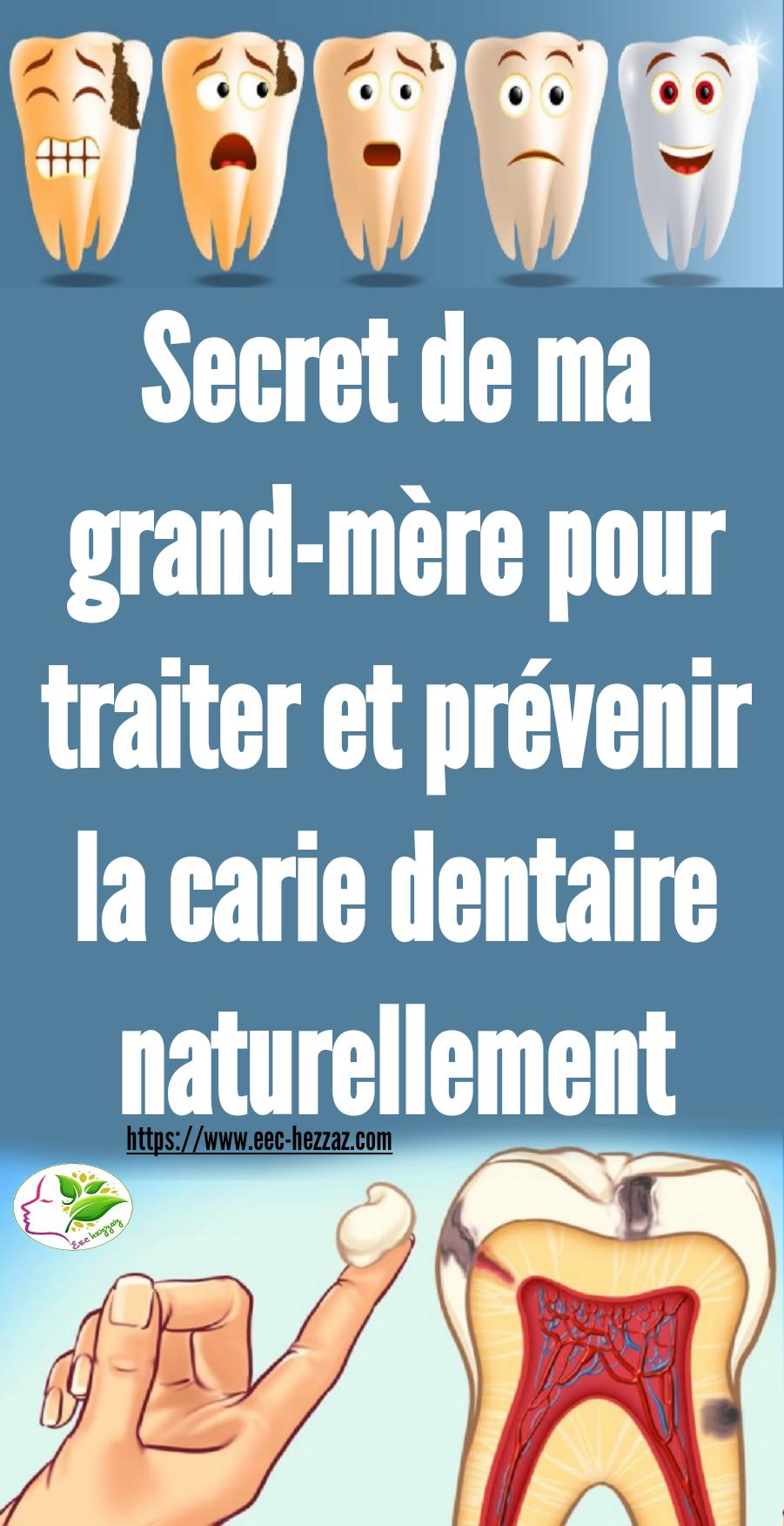 Secret de ma grand-mère pour traiter et prévenir la carie dentaire naturellement