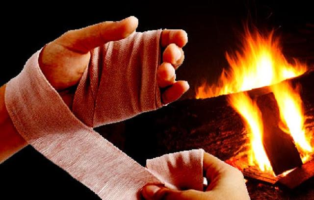 Mulher tem 70% do corpo queimado ao usar álcool para cozinhar em Rio Preto