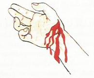 Perdarahan Balik (Vena)