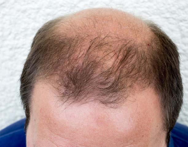 Saw-palmetto is utilized for increased prostrate hormones in men. It also resolves bladder system and relevant issues. Exclusively it is valuable for females' relevant conditions for instance it is valuable in reducing baldness.