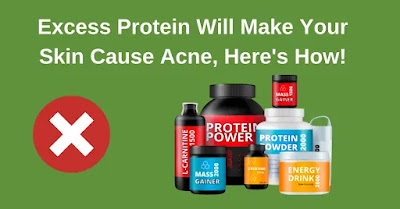 Excess Protein Will Make Your Skin Cause Acne. Here's How!