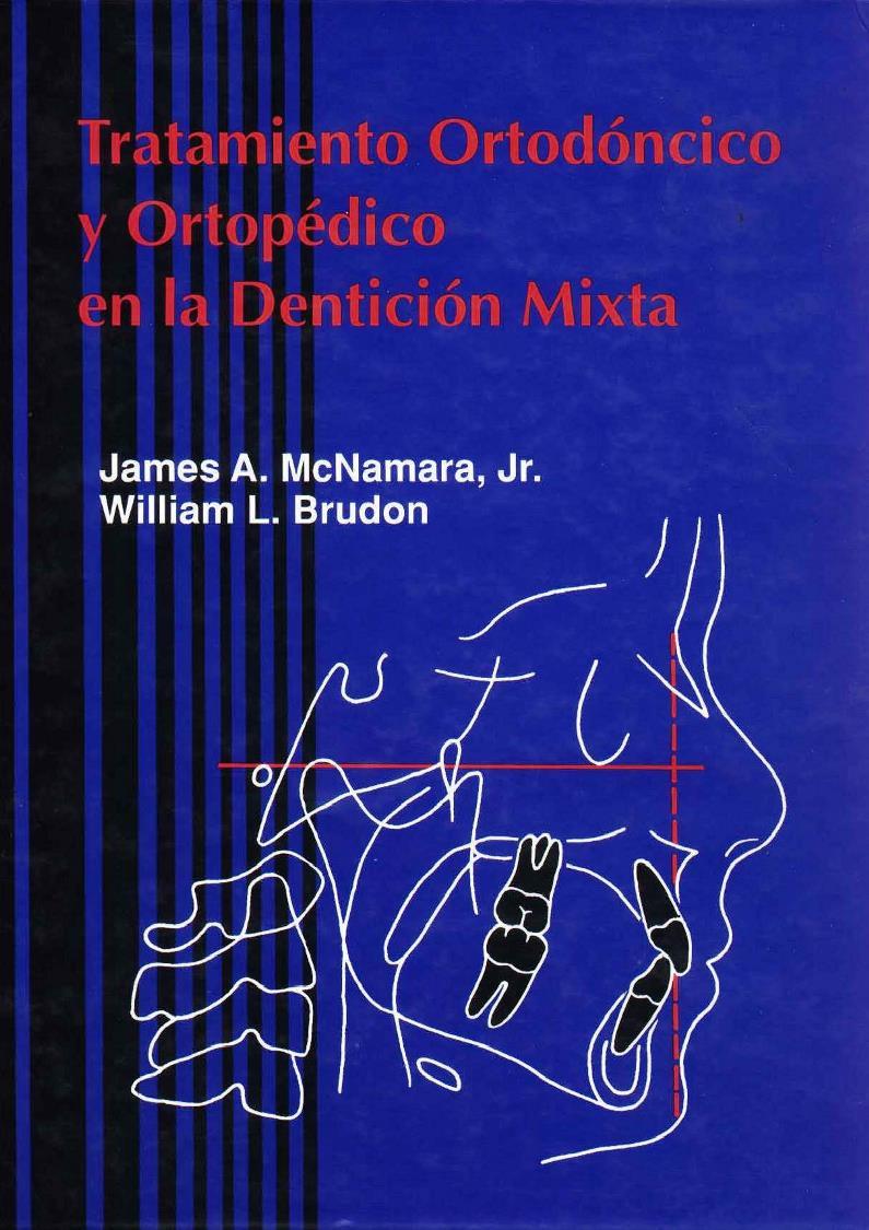 Tratamiento Ortodóncico y Ortopédico en la Dentición Mixta – James A. McNamara