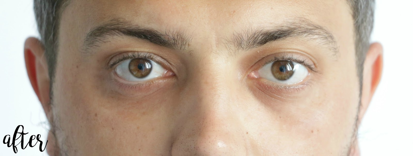 pungi sub ochi operatie