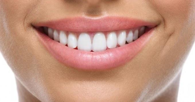 Cara Memutihkan Gigi Menggunakan Buah