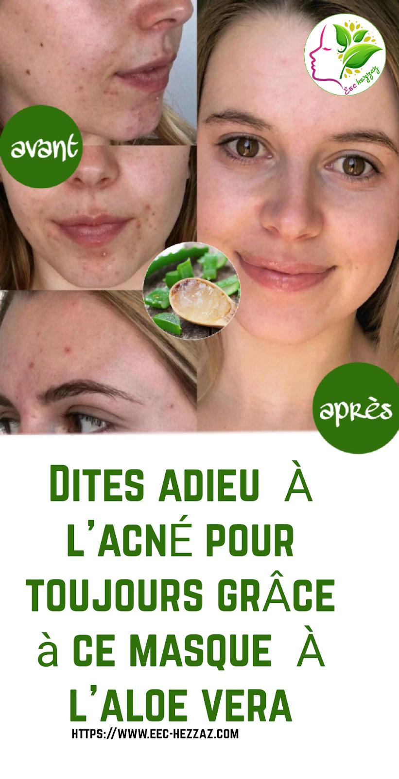 Dites adieu à l'acné pour toujours grâce à ce masque à l'aloe vera
