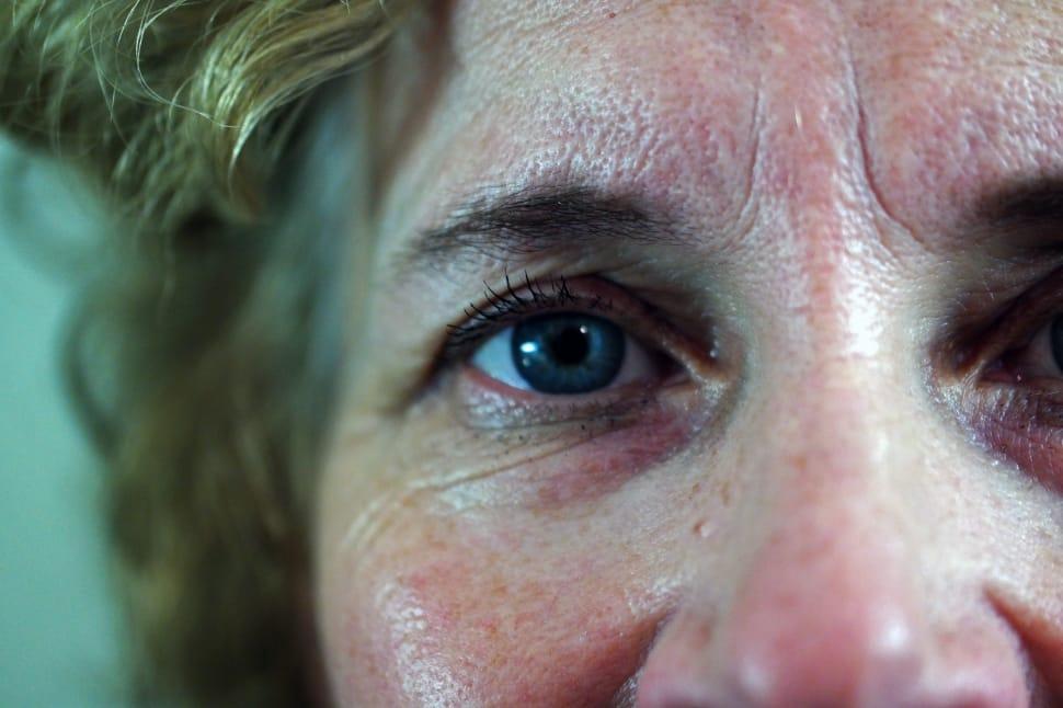 Cara Menghilangkan Kerutan di Wajah secara Alami