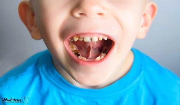 محاربة تسوس الاسنان بالفلورايد .