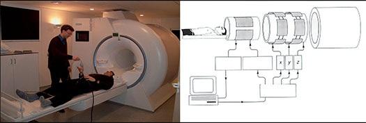 Gambar MRI_