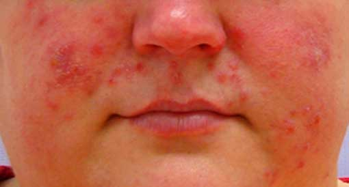 Rosacea Is Contagious Disease