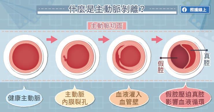 什麼是主動脈剝離?