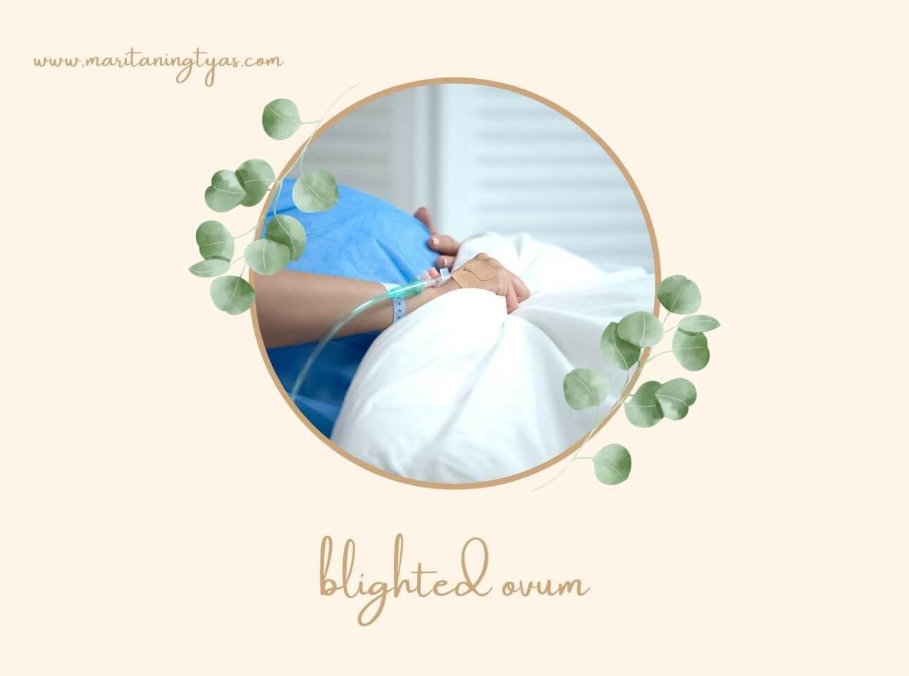 pengertian blighted ovum