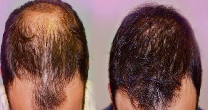 Nice tricks to grow new hair