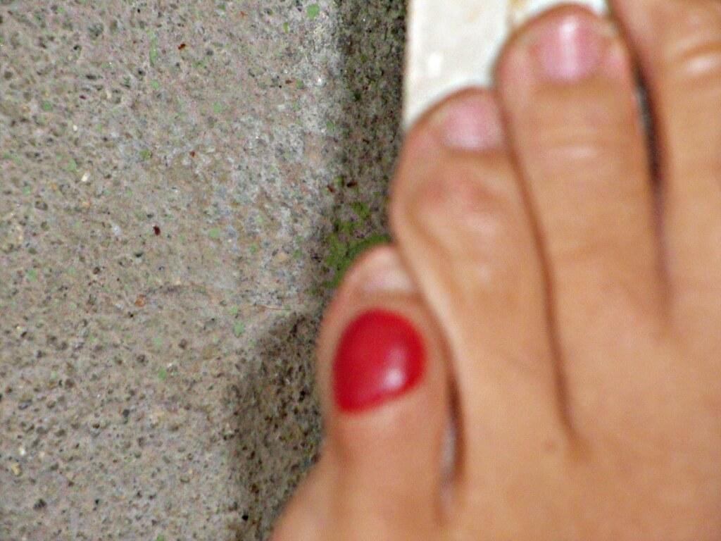 o que causa bolhas nos pés