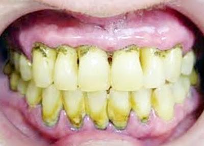 Penyebab Karang Gigi