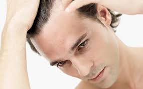 Treatments For Frontal Hair Loss