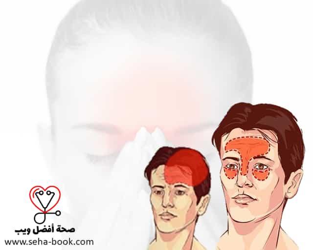 الفرق بين صُّداع الجيوب الأنفية Sinus headache والصُّداعُ النِّصْفِيّ Migraine