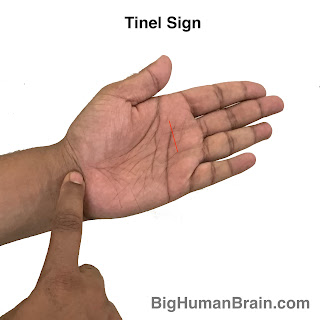 Tinel's sign is used to diagnose peripheral nerve compressions. Just by tapping the nerve patient feels severe pain along the distribution of the nerve.