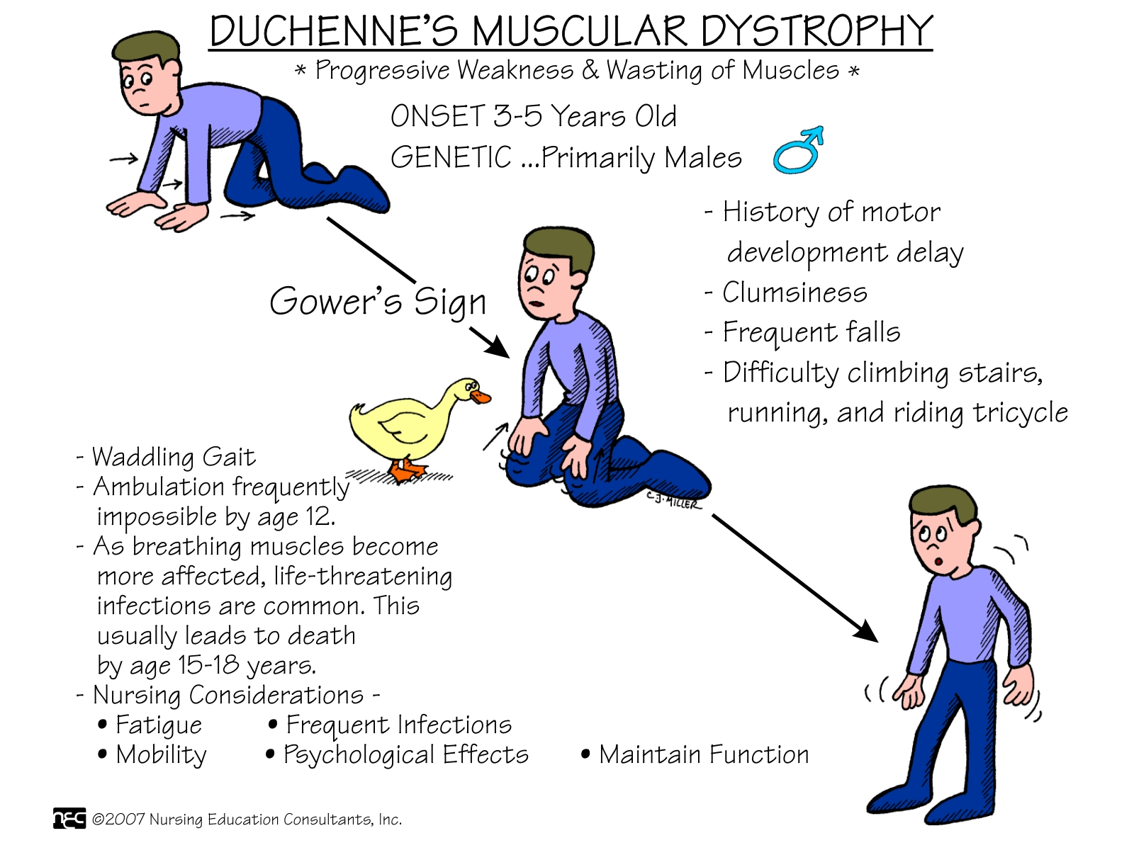 Duchenne Muscular Dystrophy Chromosome Muscular Dystrophy Elim Rheumatic Centre