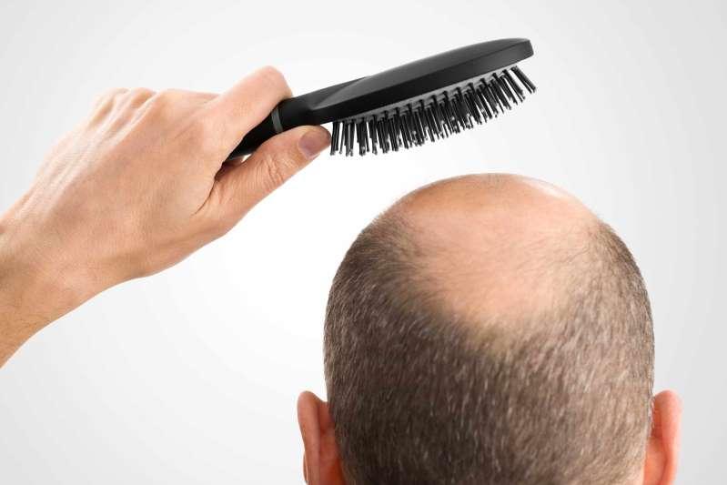 Calvície - Conheça as causas e tratamento da queda de cabelo.
