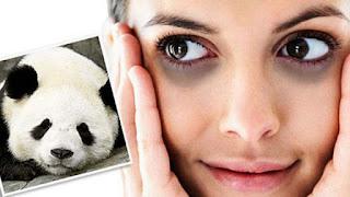 Penyebab Mata Panda