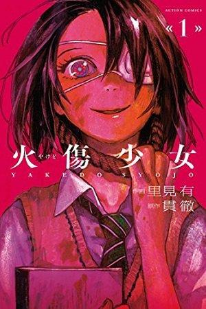 Yakedo Shoujo Manga