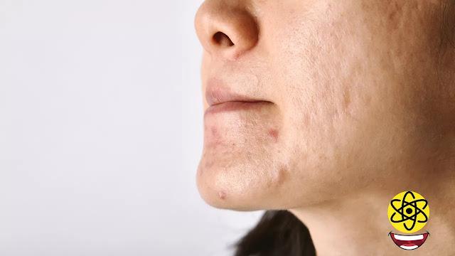 cicatriz tratamiento con ácido hialurónico