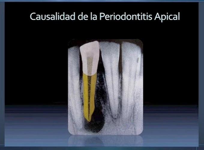 WEBINAR: Mecanismos de infección en ENDODONCIA - Dra. Tatiana Ramírez Mora