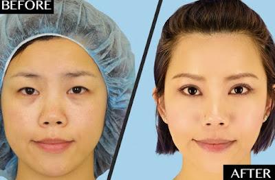 Biaya Operasi Plastik di Korea Selatan Termasuk Harga Pemulihan Pasca Operasi