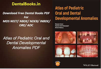 Atlas of Pediatric Oral and Dental Developmental Anomalies PDF