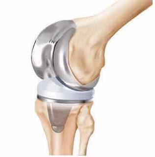 Diz protezi takılması