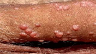 Muncul Daging Tumbuh Kasar Tidak Sakit Di Penis