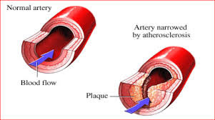 Atherosclerosis || How dangerous is it?