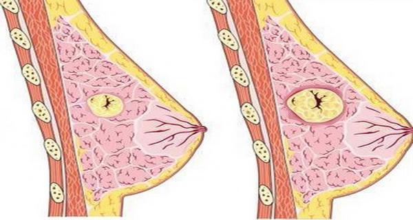 frunzele de urechelnita pot combate chisturile mamare
