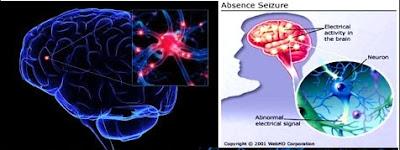 Cara Penyembuhan Epilepsi Atau Ayan Secara Herbal Sampai Tuntas