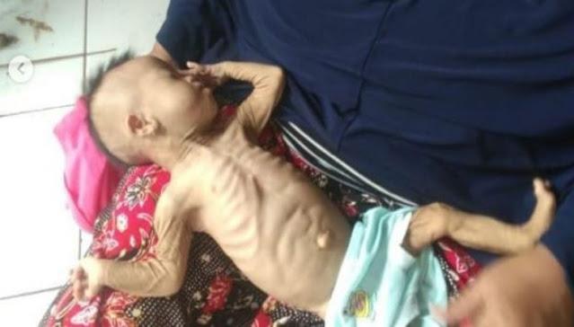 Idap Sakit Paru-paru Bayi 4 Bulan ini Tubuhnya Sampai Kurus Kering