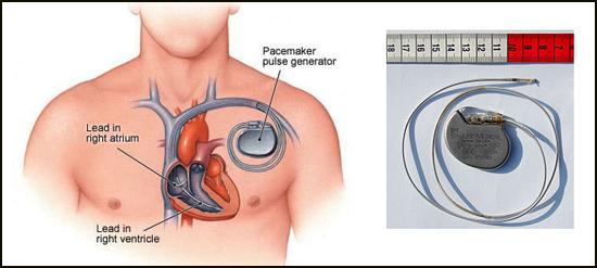 mengenal alat pacu jantung memakai wifi Alat Pacu Jantung Menggunakan WI-FI
