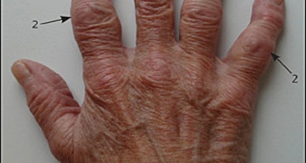 Cure Osteoarthritis And Painful Joints With These 3 Natural Remedies! 100% Effective!