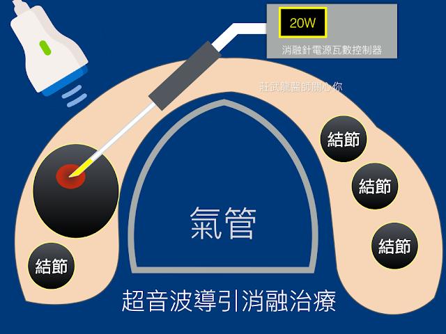 圖解甲狀腺射頻消融治療的方式