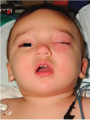 Ten-month-old with pansinusitis and left subperiosteal abscess