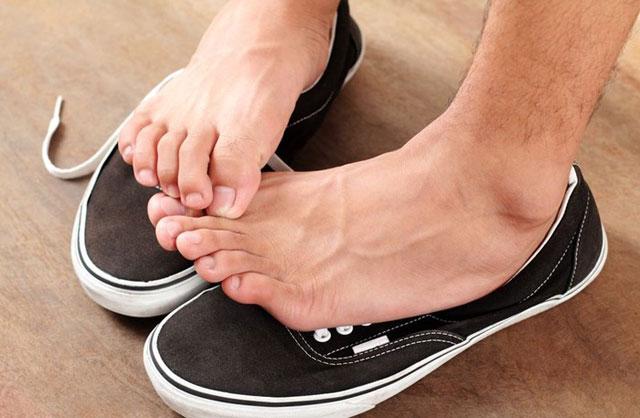 alergi sepatu