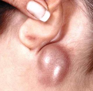 obat benjolan di belakang telinga