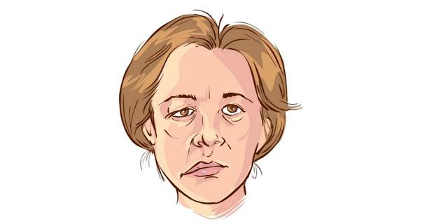 شلل الوجه النصفي  العلاجات المنزلية  لشلل بيل.