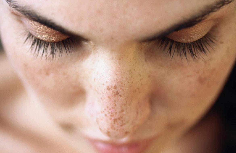 Mengenal Seputar Tampilan Kulit Freckles Wajah Hingga Menjadi Trend Kecantikan